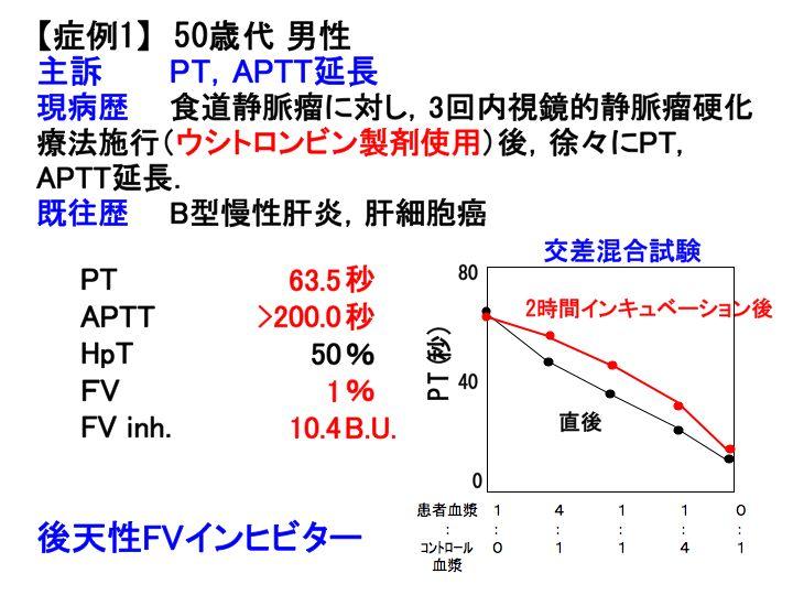 続く)第V因子欠損症3/異常症:先天性凝固因子異常症(23)へ